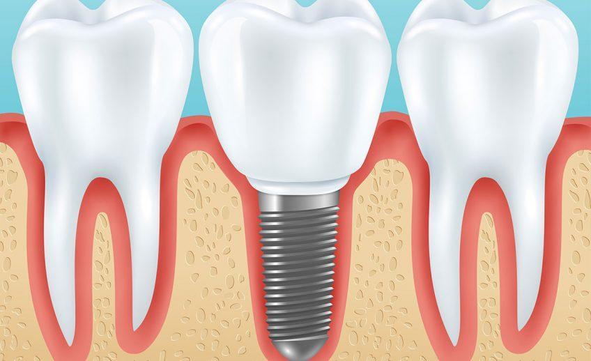 implantologia2 848x518